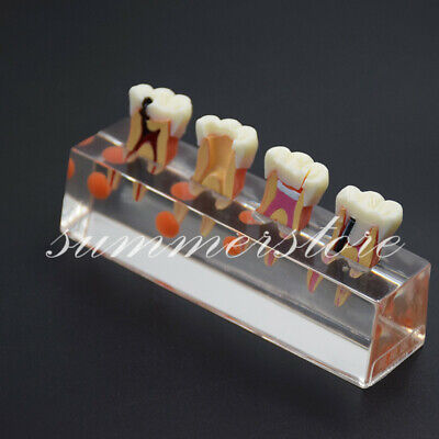 Dental 4 Stage Endodontic Root Canal Treatment Teeth Demonstrates Model 4018