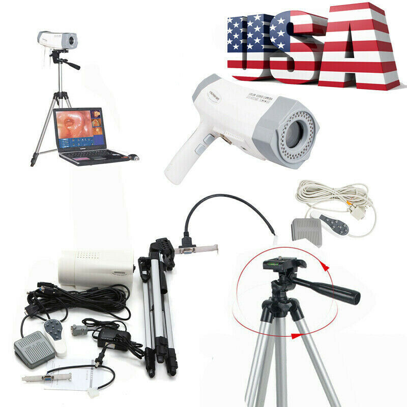 Electronic Colposcope 800,000 pixel Vaginoscopy Clear Image Software RCS400