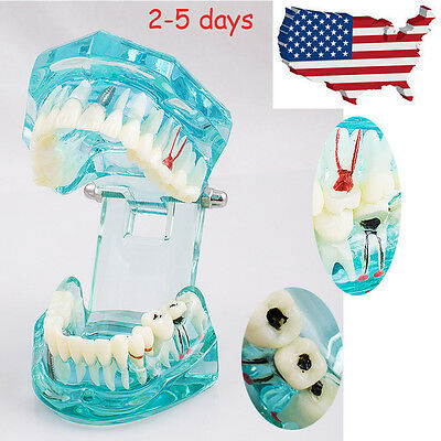 Usa Dental Implant Disease Study Teeth Model Pathological Teach Tooth Analysis