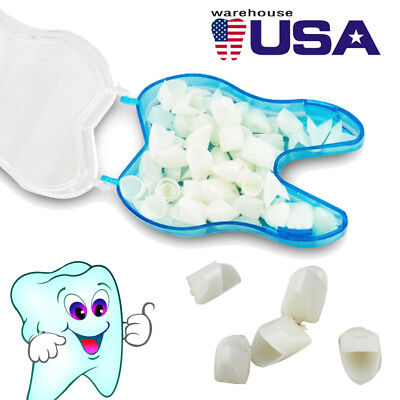 Usa 60pcsbag Dental Temporary Crown Veneers For Anterior Front Teeth Whitening