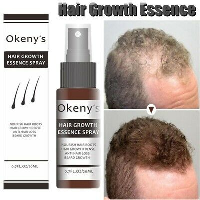 Anti Hair Loss Spray for Hair Growth Anti Baldness Treatment Hair Care Essence