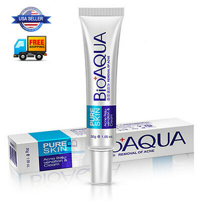 Face Care Acne Treatment Acne Scar Removal Cream