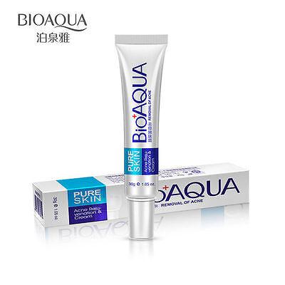 BIOAQUA Remove Acne Scar Face Care Skin Treatment Pores Cream Removal Gel 30g