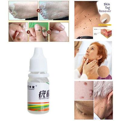 Skin Tag Treatment Cream Remover Foot Corn Plantar Genital Body Warts Ointment
