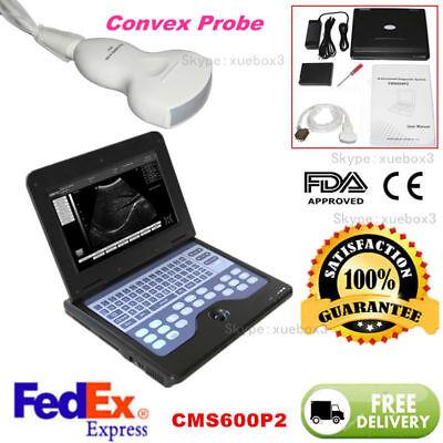 Portable Laptop Machine Digital Ultrasound Scanner 3.5 Convex Probeusa Fedex.