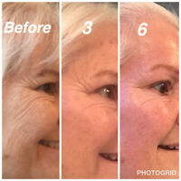 3 Beautifully Lit Anti-ageing Sessions for Half Price!