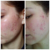 Acne - Facial or Back - Treatment Available!