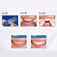 Professional Advanced Teeth Whitening White Strips For Tooth Bleaching Uk - unbranded - ebay.co.uk