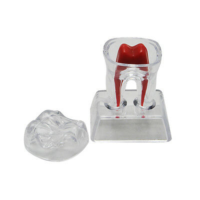 Dental Crystal Base Hard Plastic Teeth Tooth Molar Model Canbe Parts