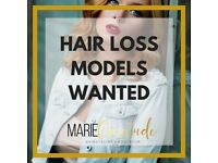 ** HAIR LOSS MODELS WANTED **
