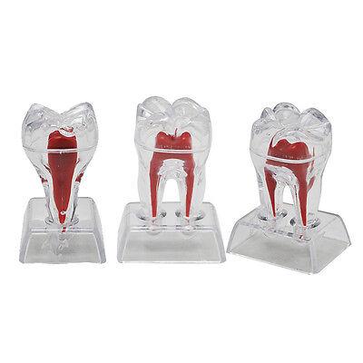 New Dental Crystal Base Hard Plastic Teeth Tooth Molar Model