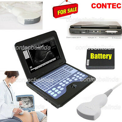 Newest Portable B-ultrasound Scanner Laptop Diagnostic Systems Convex Probe Ce