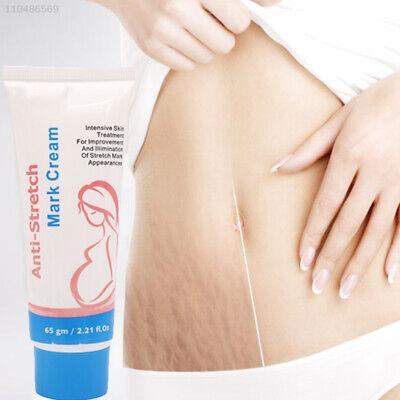 63EA Anti-Dehnungsstreifen Creme Hautreparaturcreme 50 G Schwangerschaft (Dehnungsstreifen Creme Schwangerschaft)