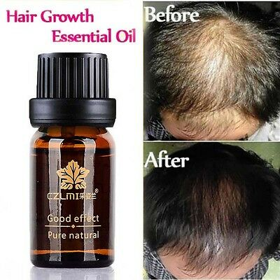 Natural Hair Loss Treatment Herbal Essence Men Women Hair Fast Growth Herbs Oil