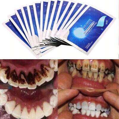 Teeth Whitening Strips 28Pcs  Professional  Bleaching White  Tooth  Advanced