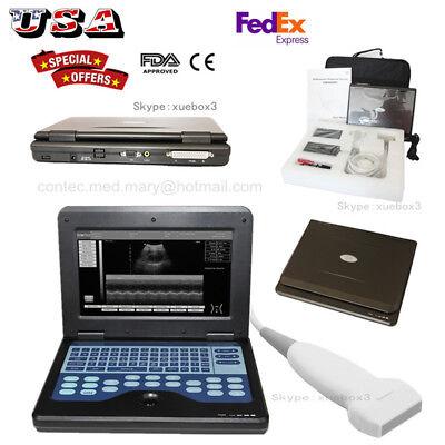 Usa Digital Ultrasound Scanner Portable Laptop Machine Linear Probe3y Warranty