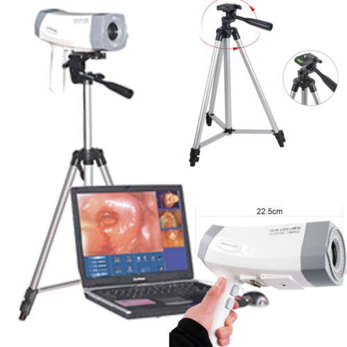 USA Video Colposcope 800,000 SONY Camera Electronic Vaginoscopy Tripod Software