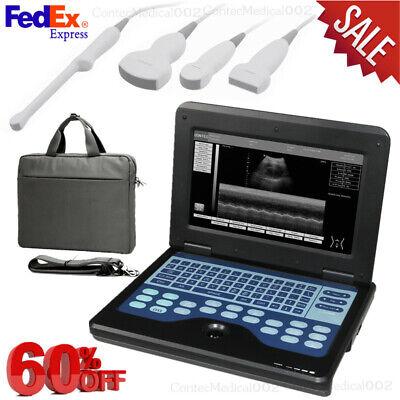 Us Fedexultrasound Scanner Laptop Machine Convex Linear Cardiac Transvaginal