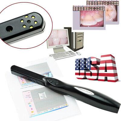 Dental Denshine Hd Intra Oral Intraoral Camera 6 Mega Pixels Imiging System