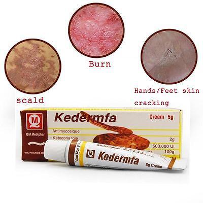 5g Vietnam Kedermfa Pure Snake Ointment For Burn Scald Skin Cracking Eczema US^