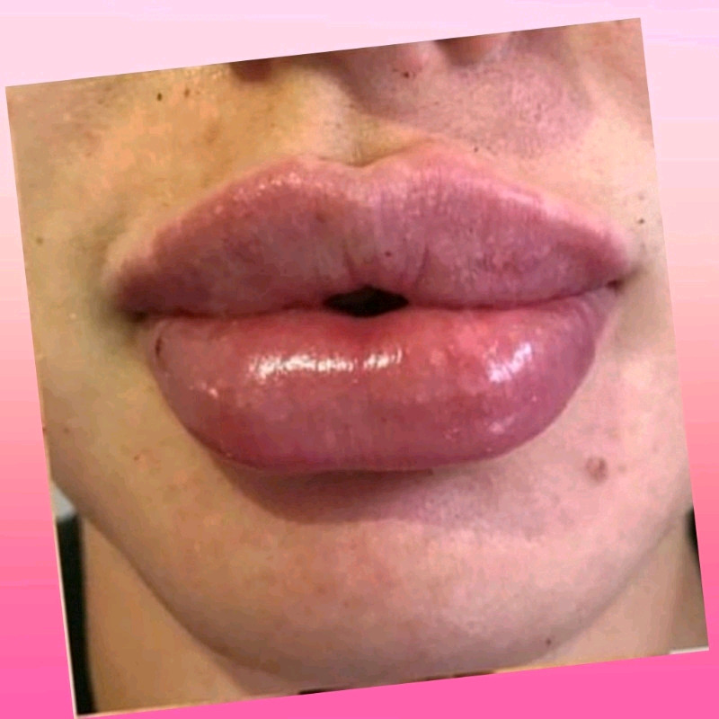 Dermal Filler 15%OFF! Lips, Jaws shape enhancement,threads
