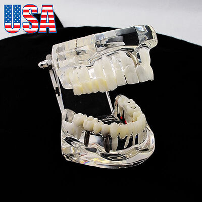 Usa Dental Teeth Model Implant Study Analysis Demonstration Disease Restoration