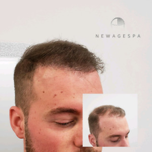 SCALP MICRO-PIGMENTATION CAPILLAIRE |  hair transplant scar