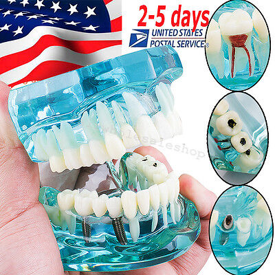 Dental Implant Disease Study Tooth Teeth Model Bridge Restoration Dentist-usa