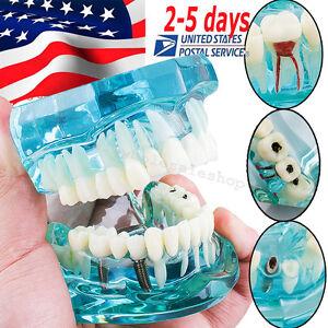 Dental Implant Disease Study Tooth Teeth Model Bridge Restoration Dentist-USA