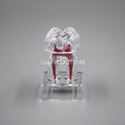 Dental Crystal Base Hard Plastic Teeth Tooth Molar Model For Study