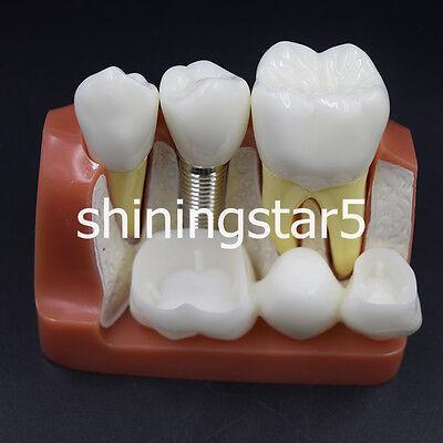 1x Implant Analysis Crown Bridge Demonstration Dental Teeth Teaching Model