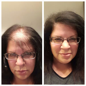 We Have A Solution For Your HairLoss Problems. Try it Now. Belleville Belleville Area image 4