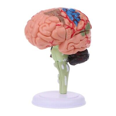 4d Disassembled Anatomical Human Brain Model Anatomy Medical Teaching Tool D