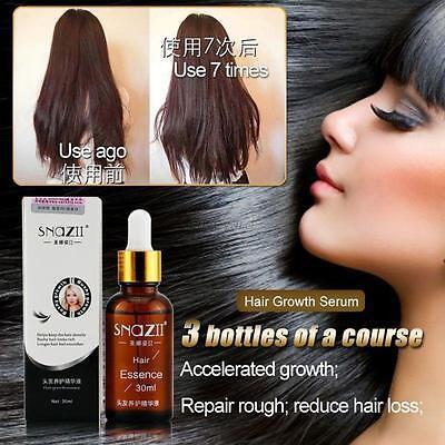 Useful Classic Snail Care Hair Loss Growth Essence Hair Thickening Fibers 30ml