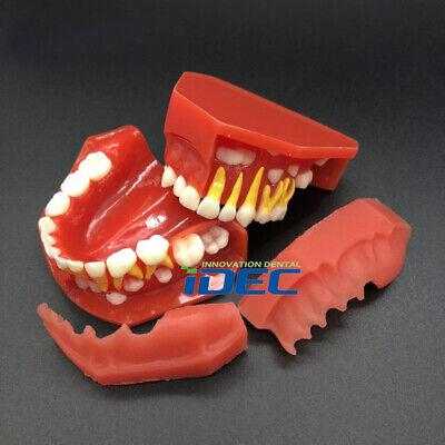 Dental Model Children Teeth Model Pediatric Development Model 3-6y Demonstration