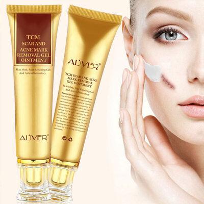 30G Tcm Scar And Acne Mark Removal Gel Ointment Acne Scar Cream