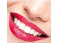 Hollywood Teeth Whitening