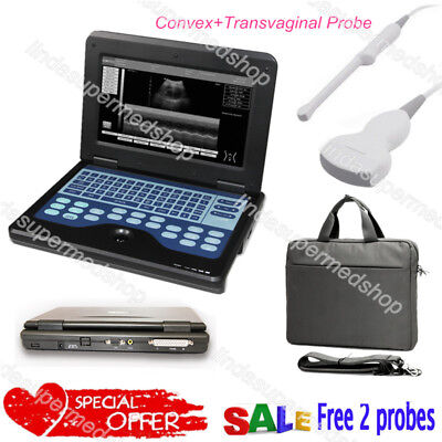 Contec Portable Laptop Machine Digital Ultrasound Scannerconvextransvaginal