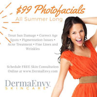 Photofacial Skin Rejuvenation Sale! Fine lines, acne, etc.