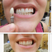 TEETH WHITENING- REAL RESULTS=WHY PAY $700?