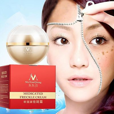 28Days Medicated Pigment Face Whitening Cream Freckle Chloasma Cyasma Removal