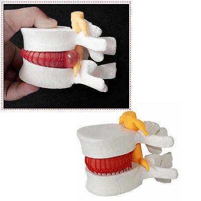 Dental Medical Demonstration Model Spine Lumbar Disc Herniation Model Tool 1pcs