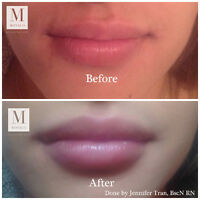 Kylie Jenner lips from as low as $225 !!! Monaco Med