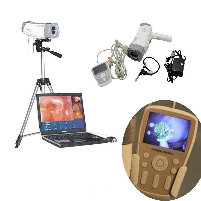 Electronic Colposcope Vaginoscope Video SONY Camera 800,000 pixels Handle Tripod