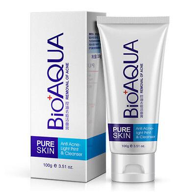 Anti-Acne Face Wash Facial Cleanser Black Head Remove Oil-control Foam Cream