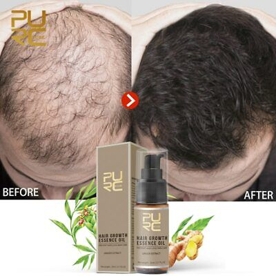 PURC Hot sale Fast Hair Growth Essence Oil Hair Loss Treatment Help for hair