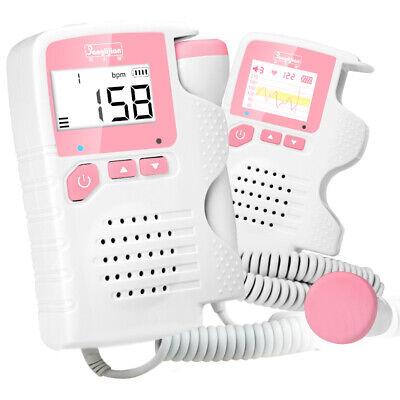 Prenatal Fetal Doppler Baby Heartbeat Monitor Ultrasonic Detector 2.0 Mhz Probe