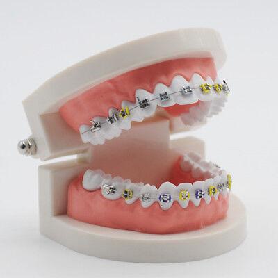 Dental Orthodontic Treatment Model Ortho Metal Bracket Arch Wire Ligature Tie