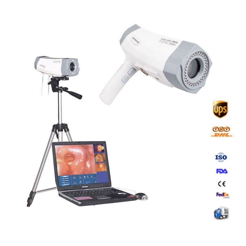 Clear Video Electronic Colposcope Colposcopy Vagina Mirror+Camera+Tripod CE