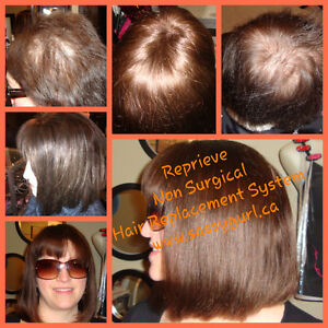 Calgary Hair Replacement Non-Surgical System $200 OFF